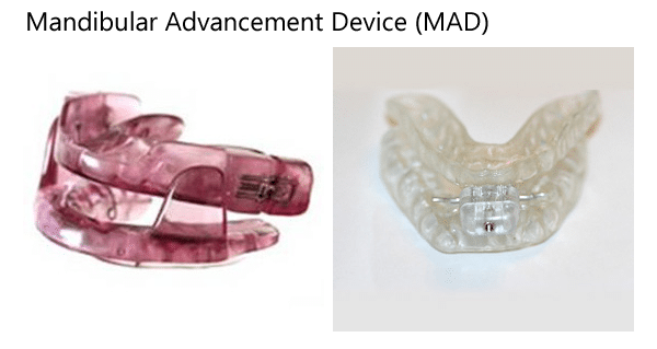 Mandibular Advancement Device oral appliance