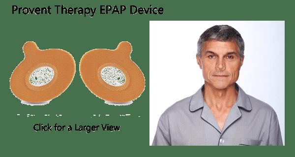 Provent EPAP Device