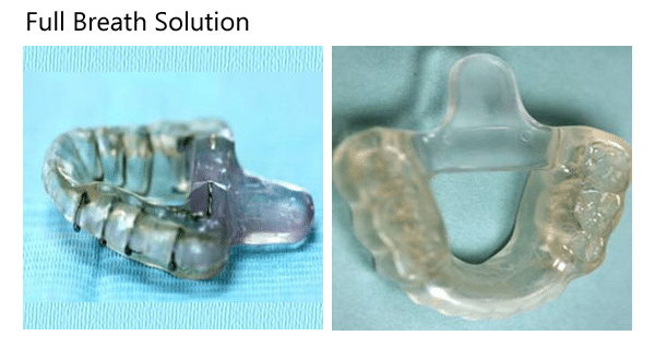 Full Breath Solution oral appliance