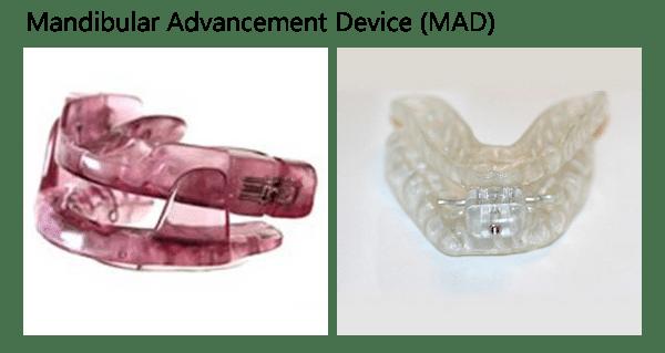 Mandibular Advancement Device oral appliance